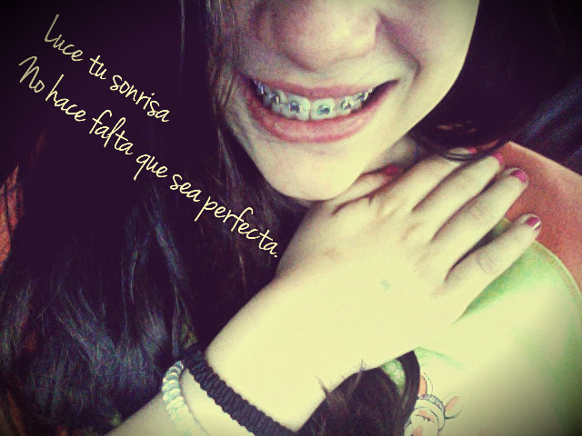 Luce tu sonrisa no hace falta que sea perfecta
